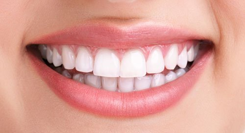 photo of a after teeth whitening service