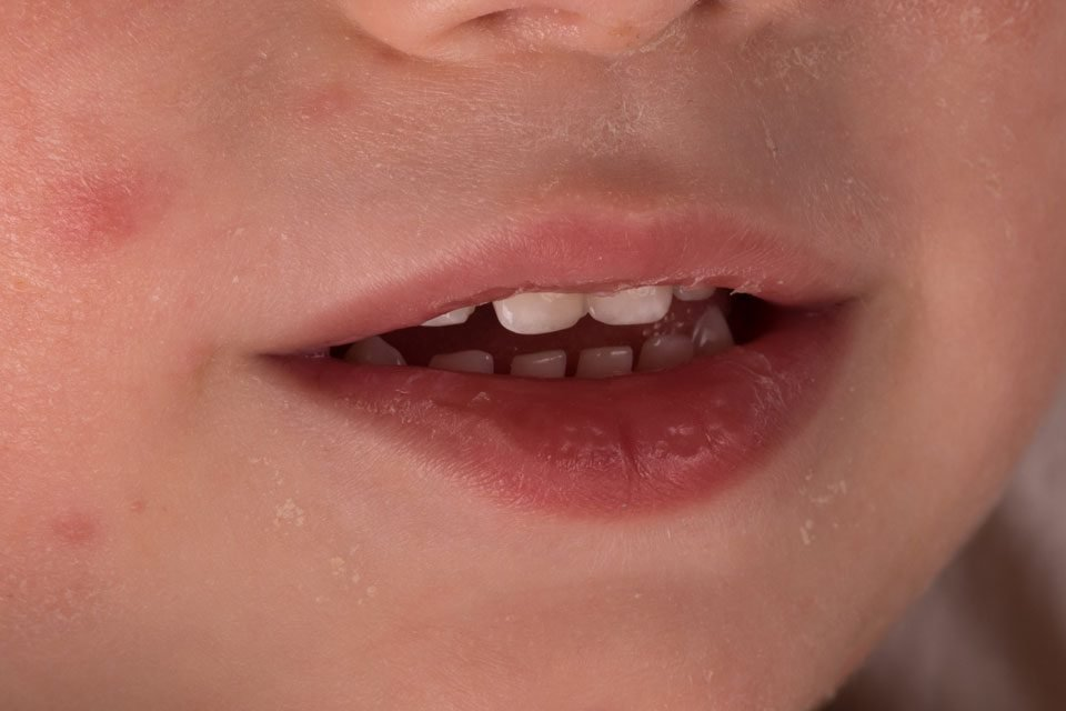 photo of a kid with teeth rash